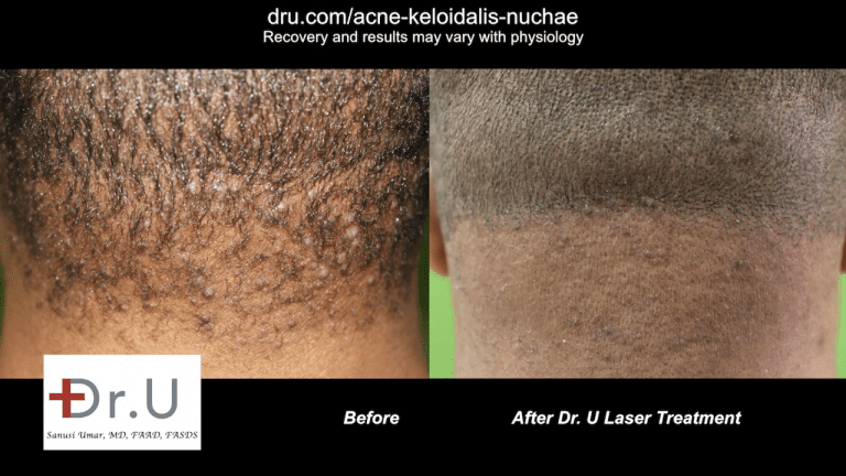 After five laser treatments with Dr. U, this East Los Angeles patient happily reported his bumps were gone.