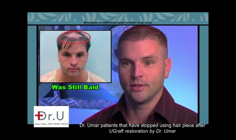 Some individuals will resort to more extreme uses of wigs and hairpieces. Rather than using glue or double sided tape, this Los Angeles patient had his hairpiece stitched to his scalp, a mistake that became very difficult to reverse. Through a Dr.UGraft ™ body hair transplant, he defied his odds and achieved a normal, natural looking coverage.