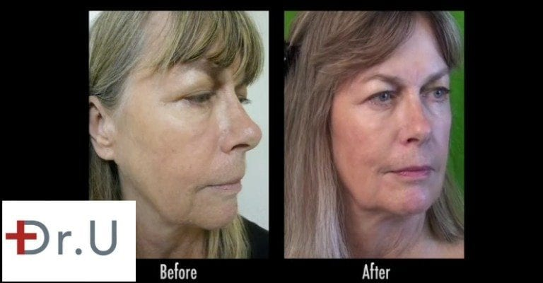 Radiesse is the best dermal filler for lifting many cases of jowls, non-surgically, as shown on this Los Angeles patient