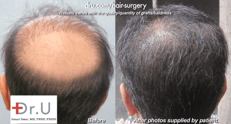 Wigs and hairpieces are commonly used by patients who fell victim to botched hair transplant results. This Los Angeles man used a toupee for fourteen years after a bad strip procedure left him with an exhausted donor supply and no hope of repair using scalp hair alone. Through a Dr.UGraft™ surgery using body hair grafts, he achieved the coverage that finally freed him completely from the use of hairpieces