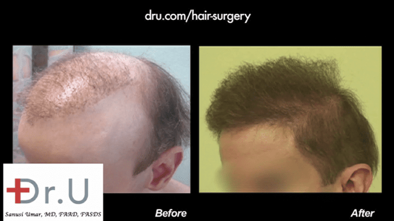 Is non-surgical hair replacement worth it? Most people would probably say no. But victims of bad hair restoration procedures may have no choice but to use some type of toupee to hide scarring and unsightly results, like this patient. With the help of a Dr.UGraft body hair to head procedure, he was able to discard his hairpiece and finally enjoy a sense of peace through a full head of naturally growing hair.