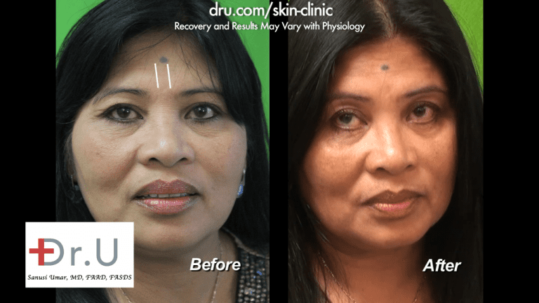 This patient decided on Belotero vs Botox and is happy with her results.*