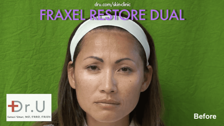 Beverly Hills patient sought fractional laser skin resurfacing for sunspots, mild-moderate wrinkles, and enlarged pores