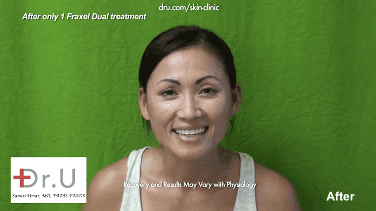 Beverly Hills, Los Angeles patient after 1 session with the Fraxel Dual laser for laser skin resurfacing.