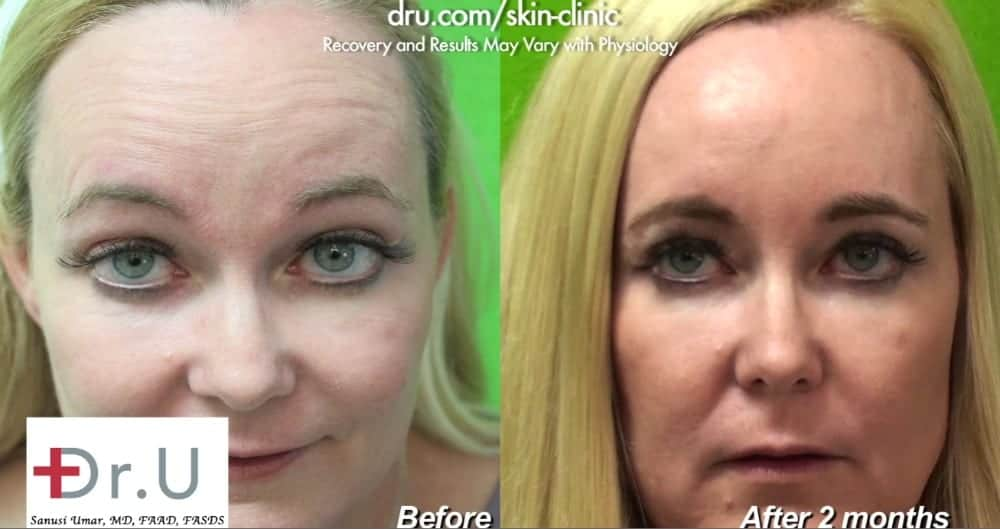 Patient is happy with her outcome using Botox for forehead wrinkles & crows feet.*
