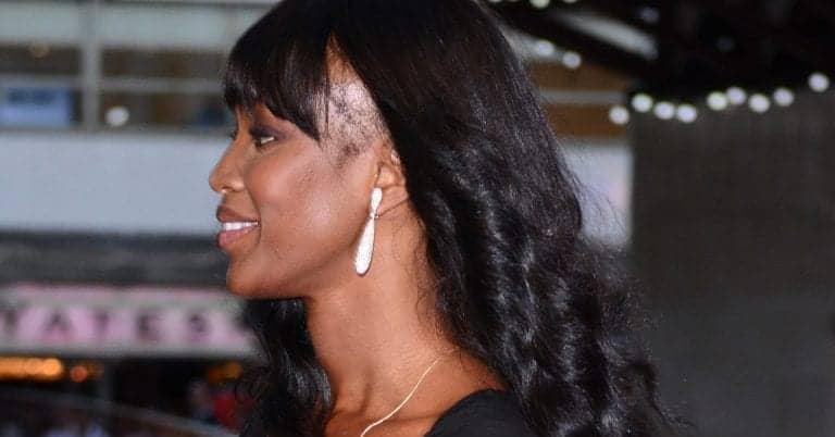 Naomi Campell edges hair loss