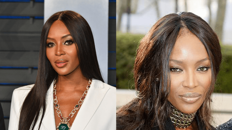 Many were shocked when, at a 2012 appearance in London, Naomi Campell appeared to have significant hair loss on her front hairline, in between her signature middle part (right). Campell is known for her sleek, long black hair, parted in the middle, which serves to accentuate the symmetry of her facial features (left). This stark change had people wondering, can traction alopecia be reversed?