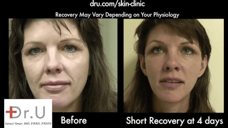 Patient's nasolabial folds show major improvement 4 days after her Silhouette Lift
