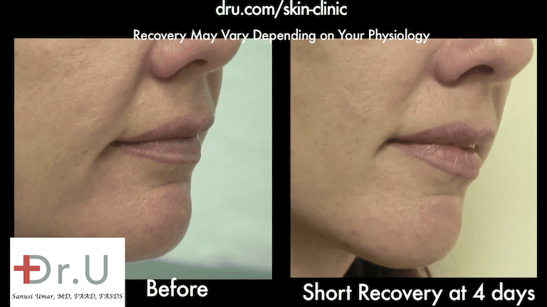 Sagging cheeks no longer produce a fold over effect thanks to the Silhouette Facelift.
