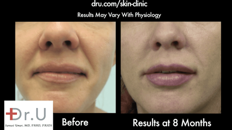 Dr. U's Silhouette thread face lift helped pull back patient's sagging cheeks.