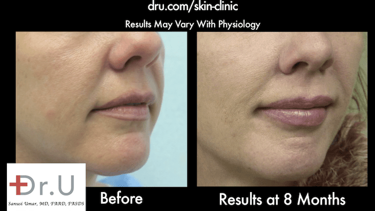 Dr.U's Silhouette non surgical Lift, combined with hyaluronic acid filler, created an incredibly natural looking improvement for the laugh line and cheeks.