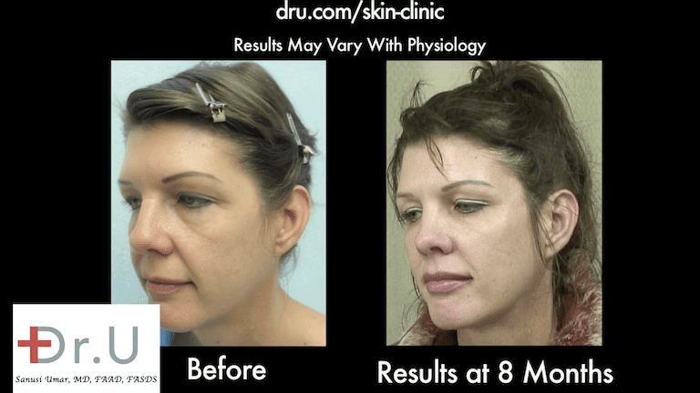Patient's drooping cheeks no longer produce an overlap, folding effect after treatment with Dr.U's Silhouette Lift and fillers.