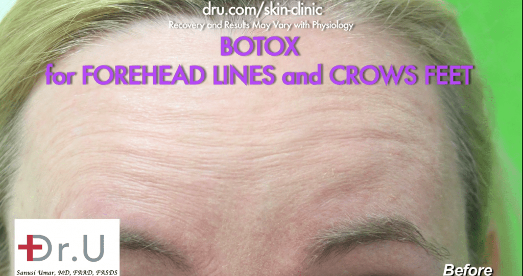 Beverly Hills patient before procedure using Botox for forehead wrinkles.