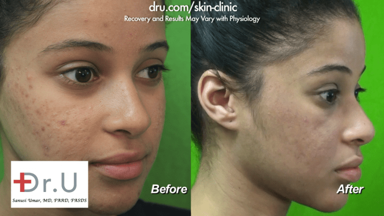 """After searching high and low for an """"acne laser treatment near me"""", this Santa Monica patient was pleased to find the Dr. U Skin Clinic. She is happy with her Spectra laser treatment results."""