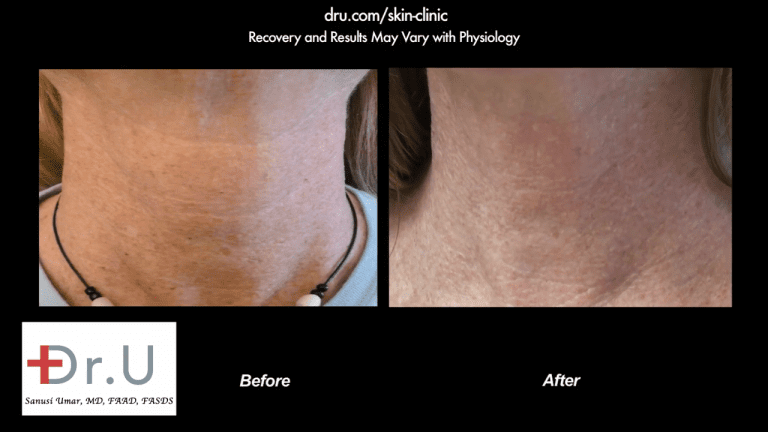 The patient was happy to get rid of not just the age spots on face, but those on her neck as well.
