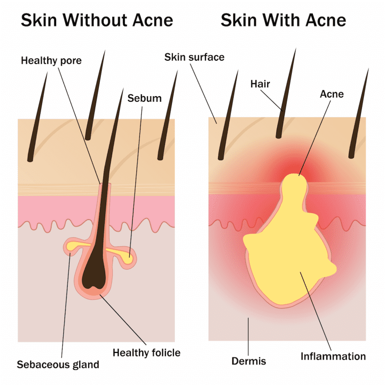 Acne is the result of an inflamed or infected sebaceous gland. Laser therapy can be an effective way to target these inflamed glands.