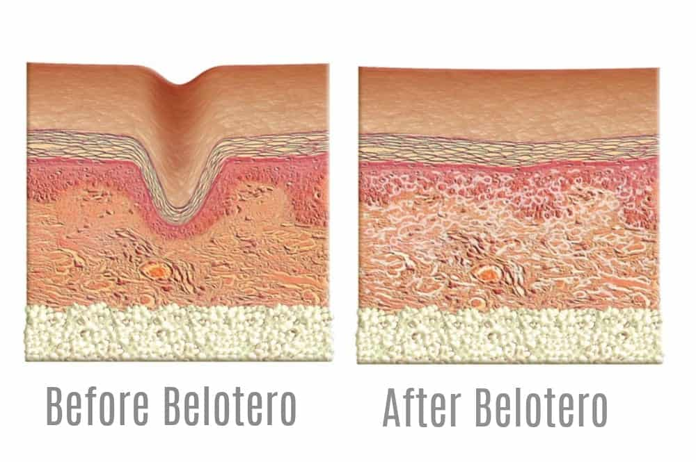 How Belotero works for forehead creases and other wrinkles. Image - Belotero.com