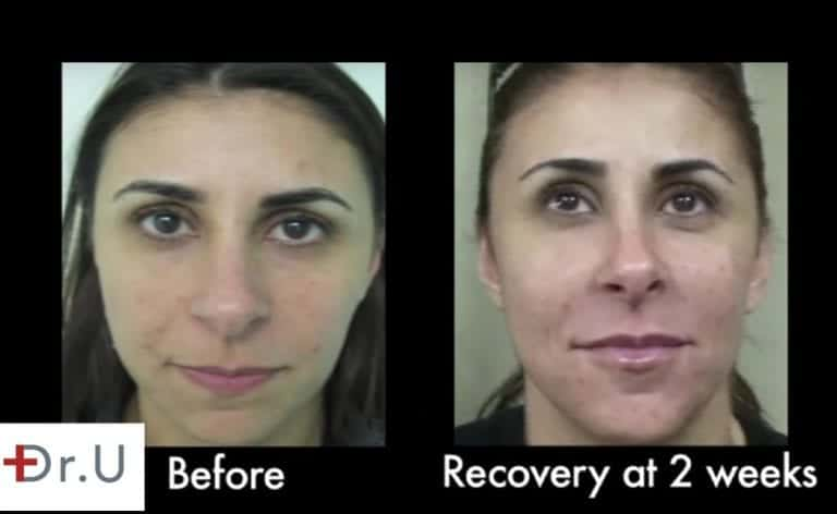 Patient shows excellent healing and improvement of her laugh lines at 2 weeks *