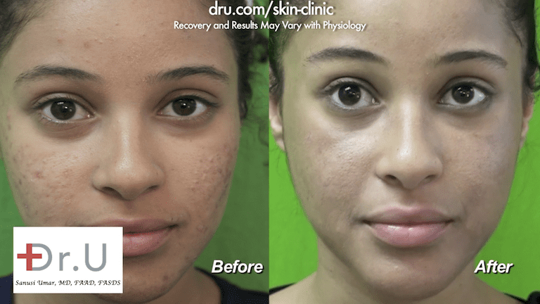 The patient was happy to see the results of her laser skin acne treatment. After targeting the remaining acne, Dr. U focused on the acne scars underneath.*
