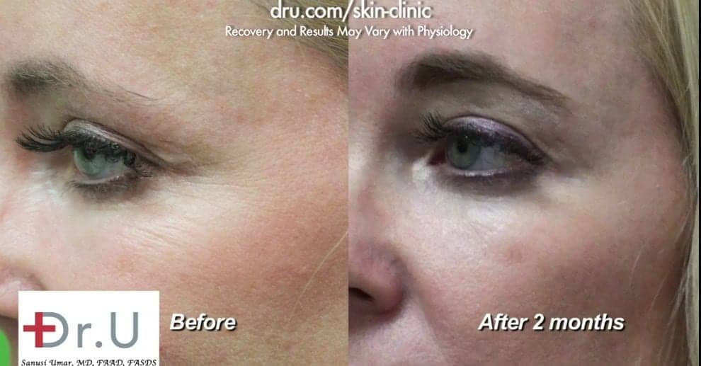 Botox for crows feet helped eliminate static lines.