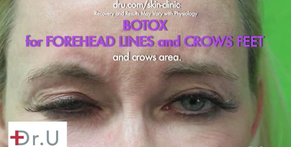 Patient before her Botox for crows feet treatment.