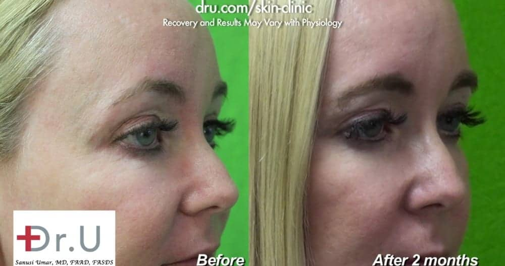 Botox patient before and after crows feet.*