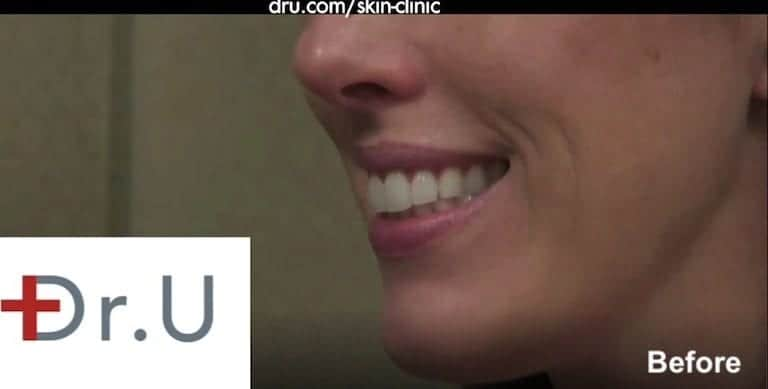 Patient showing onset of deep laugh lines around the mouth