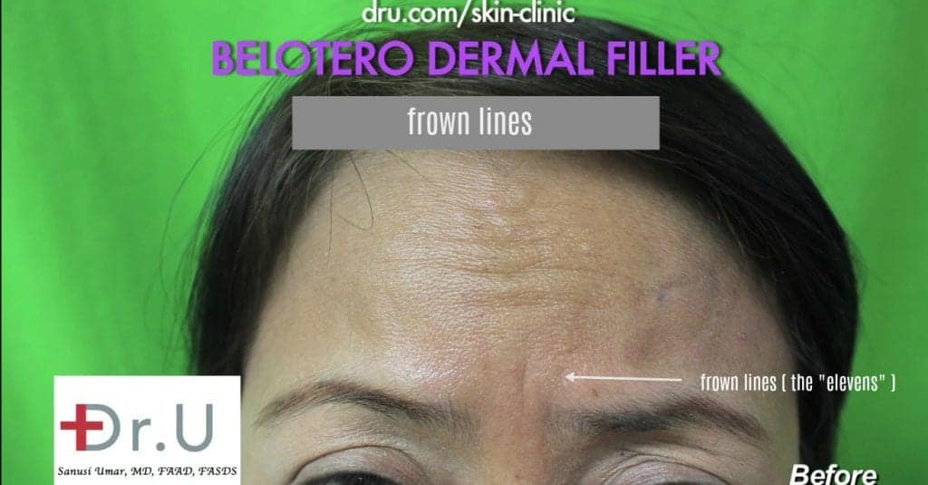 Manhattan Beach, Los Angeles patient wants to get rid of frown lines with Belotero.