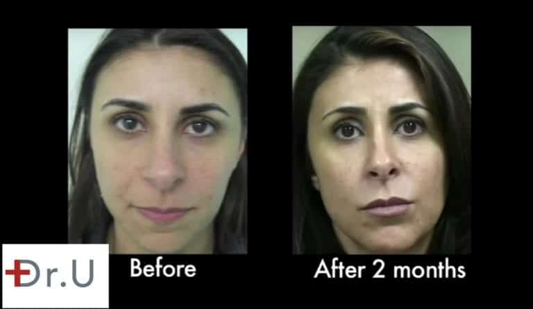At two months, the hyaluronic acid laugh lines filler continues to produce natural looking results.*