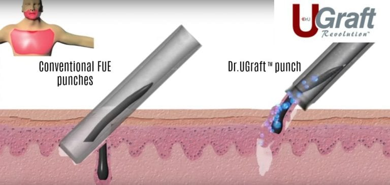 A Dr.UGraft™ hair transplant with a natural hairline is able to use grafts from the leg, nape or other area of the body using specialized technology.