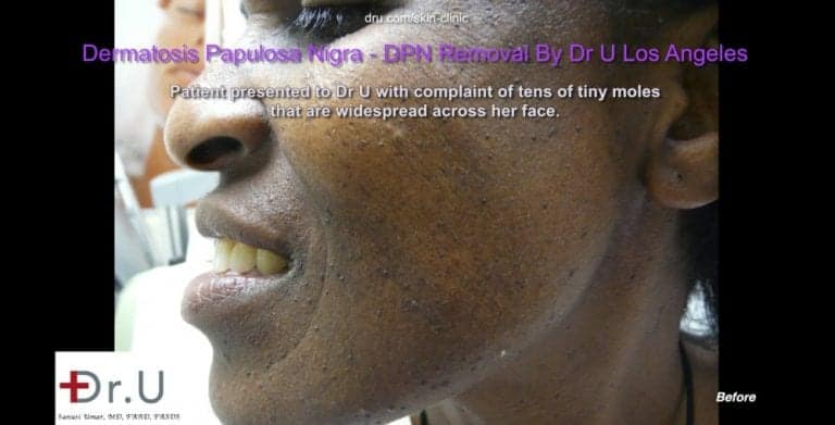 The appearance of dark skin tags on the face is due to Dermatosa Papulosa Nigra which develop over time due to genetic and environmental influences