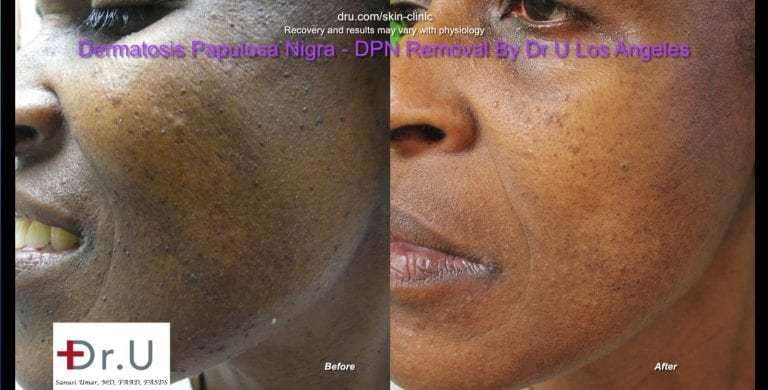 Closeup view showing clearance of dark skin tags on the face.