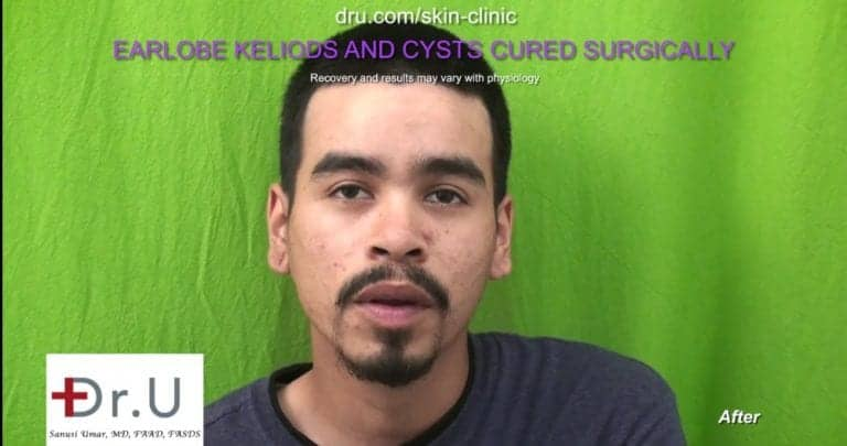 Patient's left and right ear appear similar to one another after Dr. U keloid cyst removal