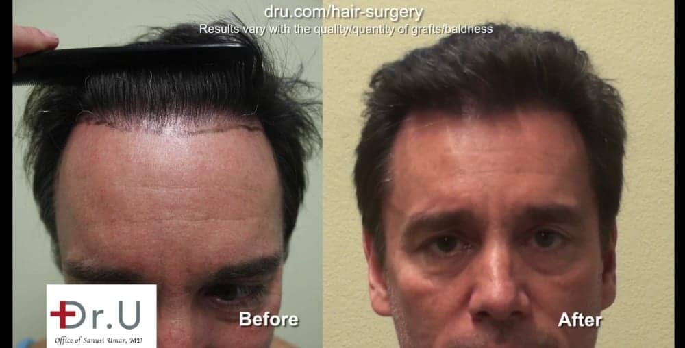 A hair transplant with a natural hairline should have a soft outer edge.