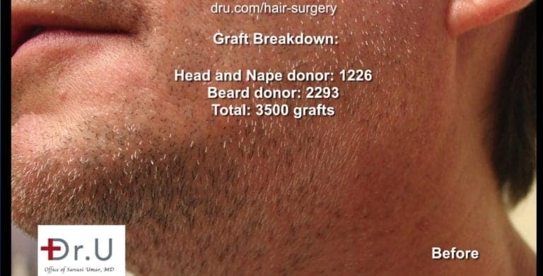 The Dr.UGraft™ undetectable hairline transplant and repair procedure required 3500 grafts.