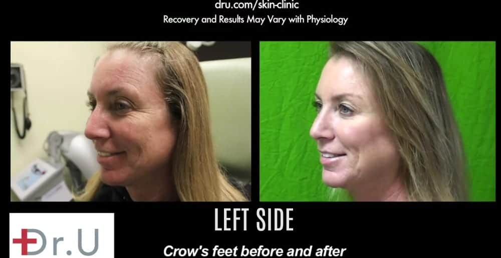 Left side of treatment results using Botox for crows feet around the eyes.