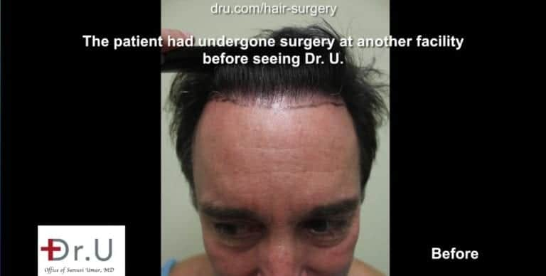 Torrance, Los Angeles patient before his Dr.UGraft™ undetectable hairline transplant.