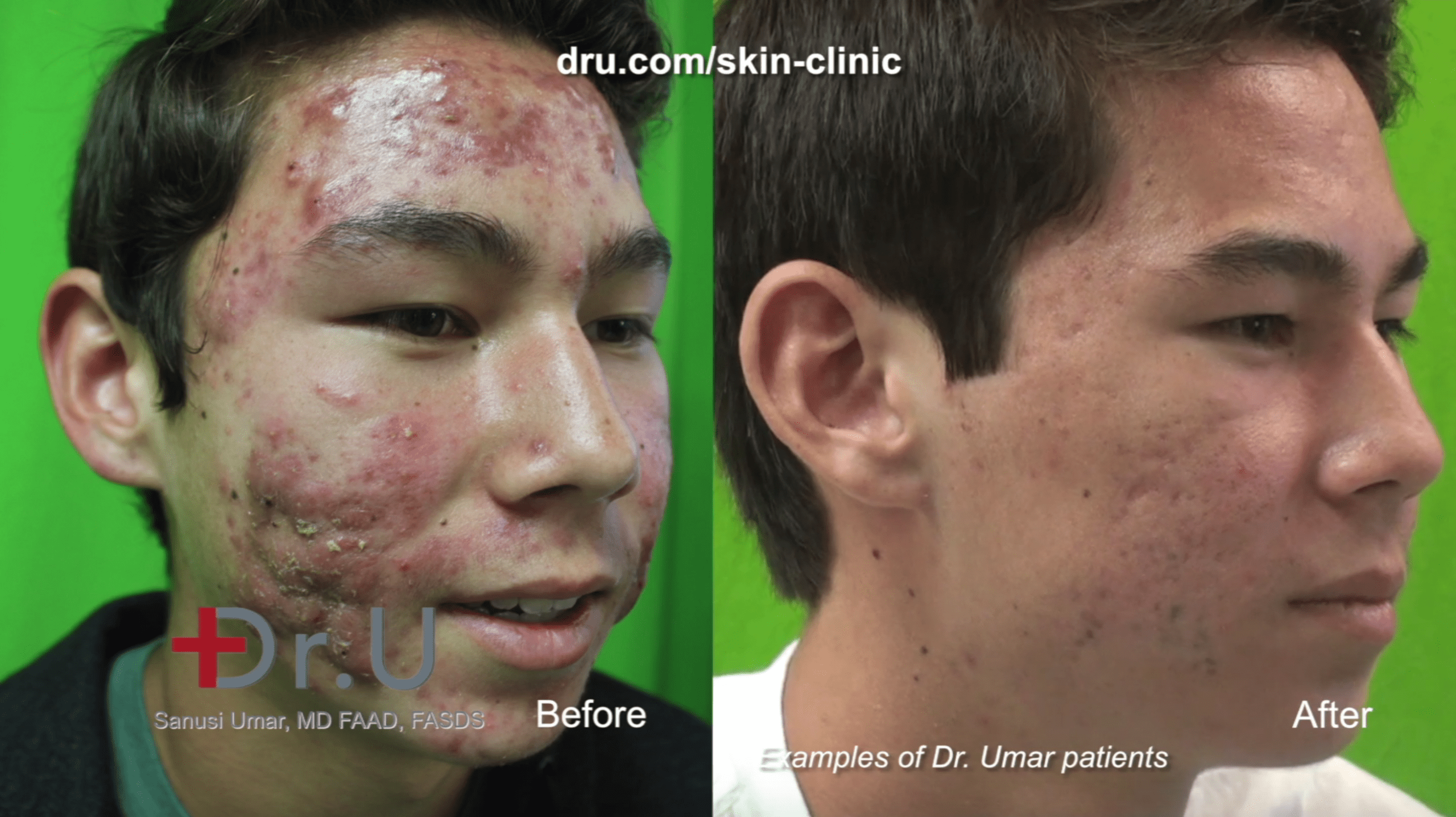 The result of PDT laser treatment for acne at Dr. U Skin Clinic.*