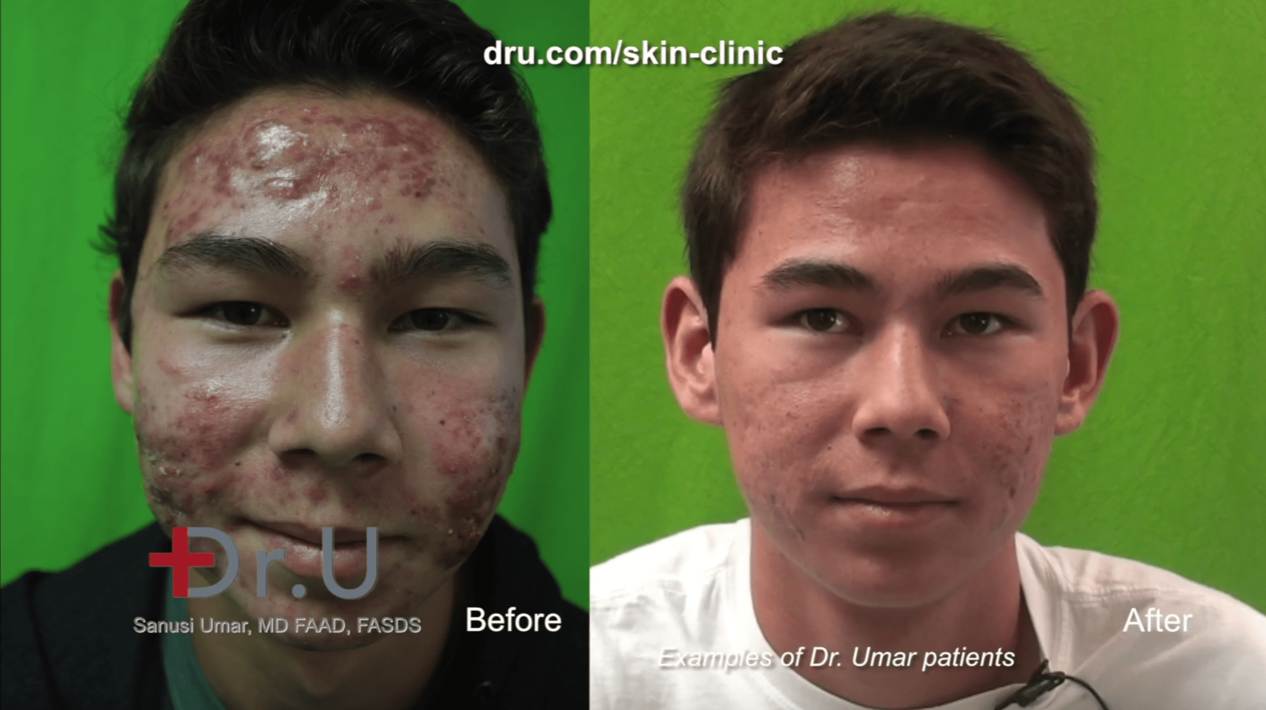 This minor patient's parents opted for severe acne laser treatment over Accutane. PDT laser therapy yielded excellent results.*