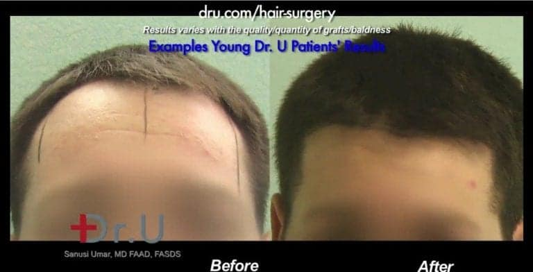 What is the best age to get a hair transplant surgery? The right age for hair transplant surgery will differ for each patient