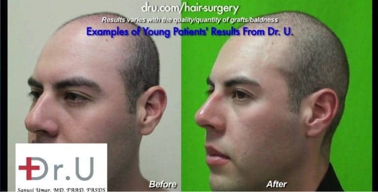 Torrance patients can get a hair transplant at age 23 with the right donor quantity