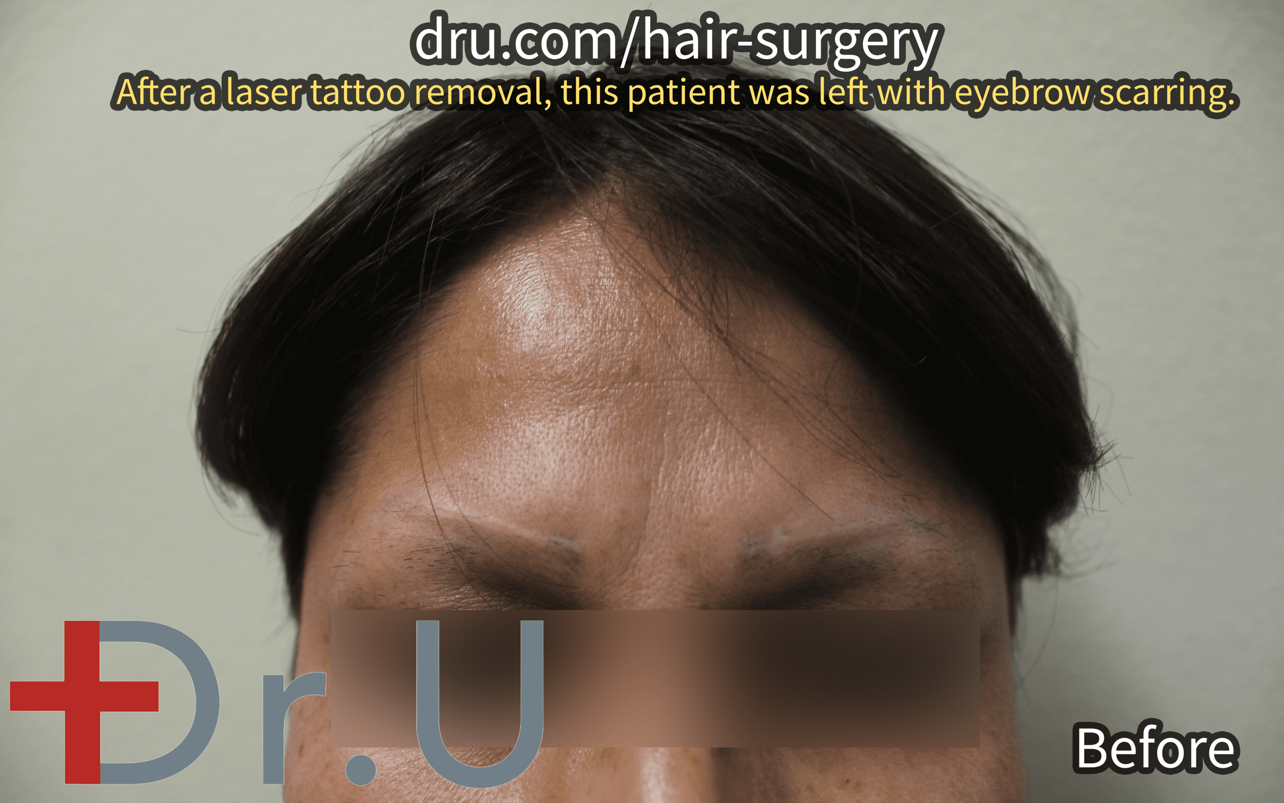 The California patient before her second eyebrow loss and tattoo scar repair surgery. She sought to diminish the appearance of her eyebrow scars.