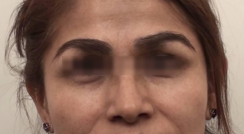 Eyebrow repair