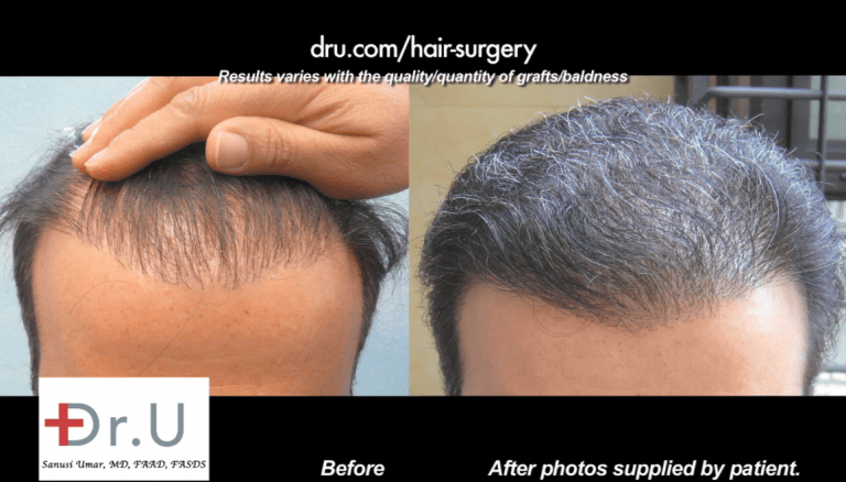 Poor growth yield can be repaired if enough donor grafts are available. If scalp supplies have been exhausted, then body hair may be considered.