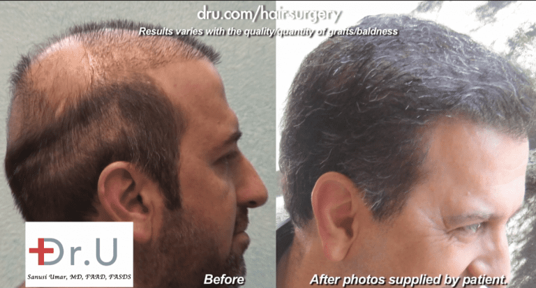 Poor hair transplant growth may result from mistakes in handling and selecting the grafts during surgery *