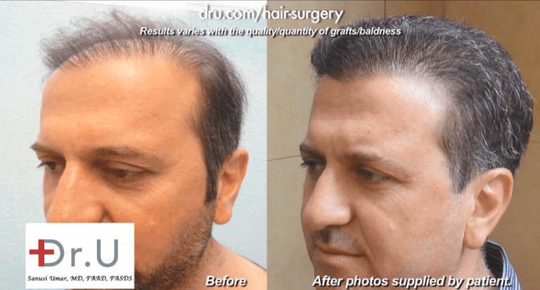 Sometimes there are no obvious causes that explain the phenomenon of no growth after a hair transplant. But these instances are very rare, according to Dr. Umar