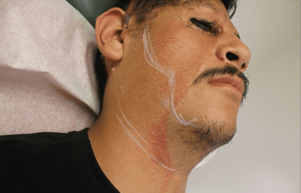 Dr.U plans out the area where grafts will be inserted for the patient's beard and sideburn hair transplant