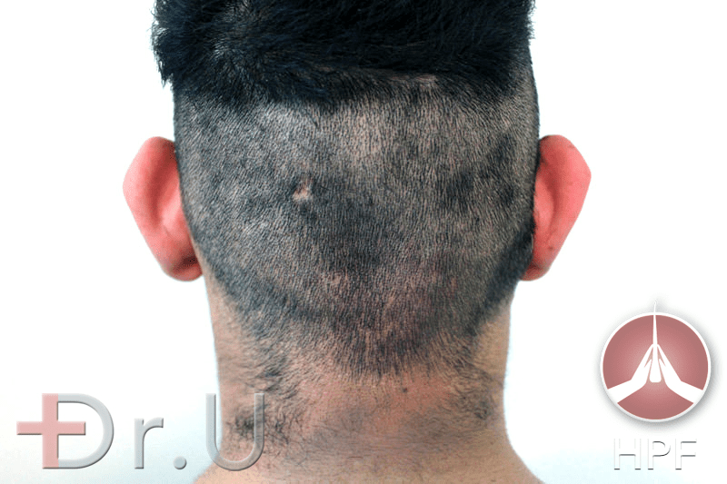 Dr.U's FUE Shave Test results show an even distribution of hair throughout the scalp. This patient, therefore, qualified for the long-term use of nape hair for his eyebrow and beard transplant procedure