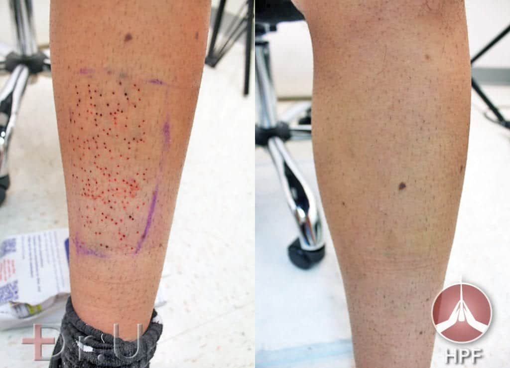 Before and after photos show excellent healing of patient's leg which helped supply donor grafts for this eyebrow and beard transplant procedure