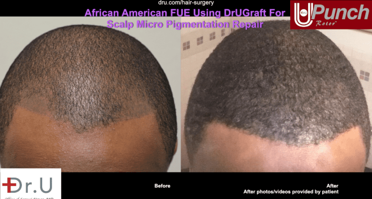 Hairline and temple restoration , including SMP coverage using grafts harvested with Dr.U's intelligent punch and Intuitive FUE system